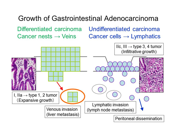 消化管癌(胃癌,大腸癌)の発育進展の特徴