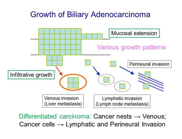 胆道癌の発育進展の特徴